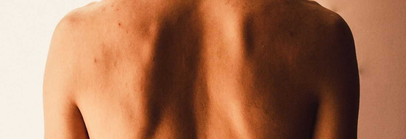 La hernie discale : mieux comprendre le phénomène à la lumière des récentes découvertes